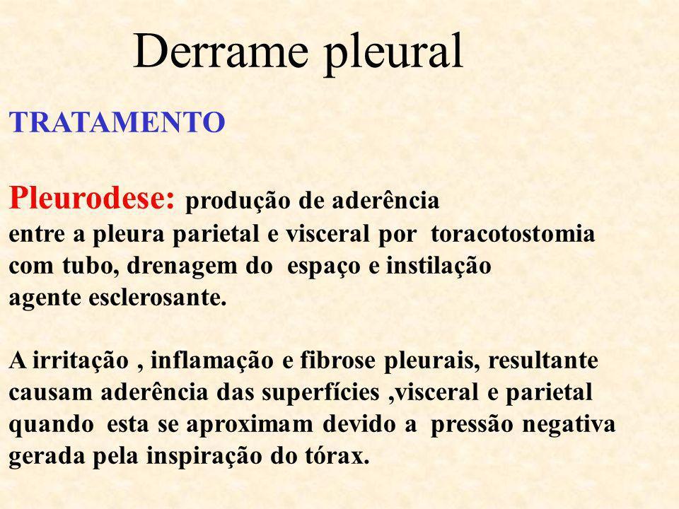Derrame pleural TRATAMENTO Pleurodese: produção de aderência entre a pleura parietal e visceral por toracotostomia com tubo, drenagem do espaço e inst