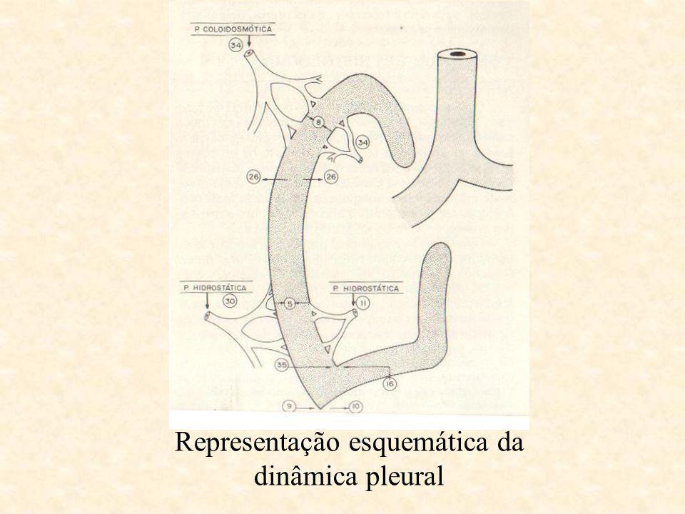 Curva de Damoiseau Residual EncistadoHidropneumotórax Infrapulmonar Hemotórax com desvio da traquéia Aspectos radiológicos - representação esquemática