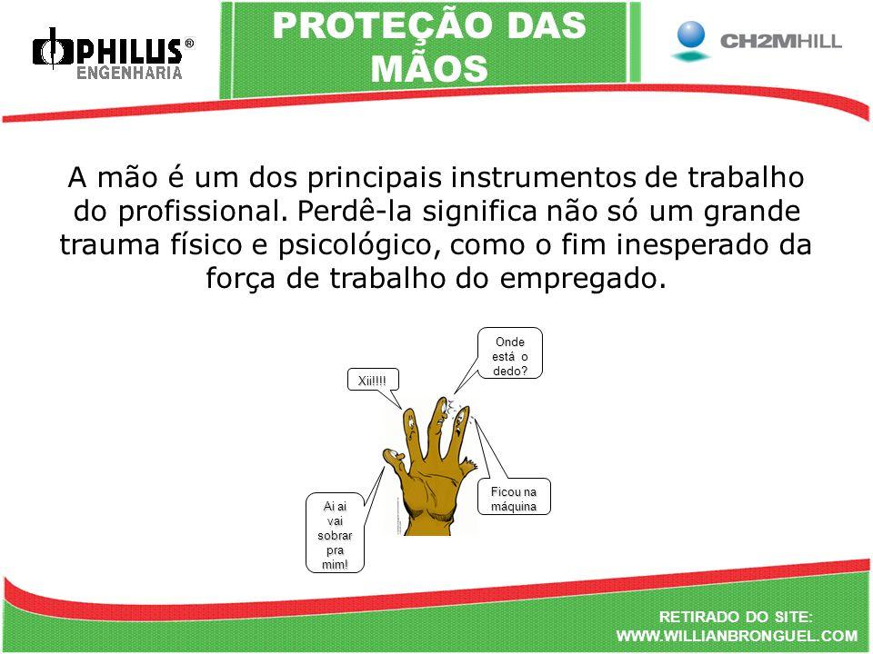RETIRADO DO SITE: WWW.WILLIANBRONGUEL.COM PROTEÇÃO DAS MÃOS A mão é um dos principais instrumentos de trabalho do profissional. Perdê-la significa não