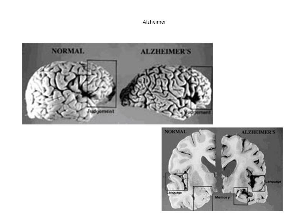 Quem pode ser afetado pela DA Alzheimer O único fator de risco bem conhecido e aceito universalmente é a idade.