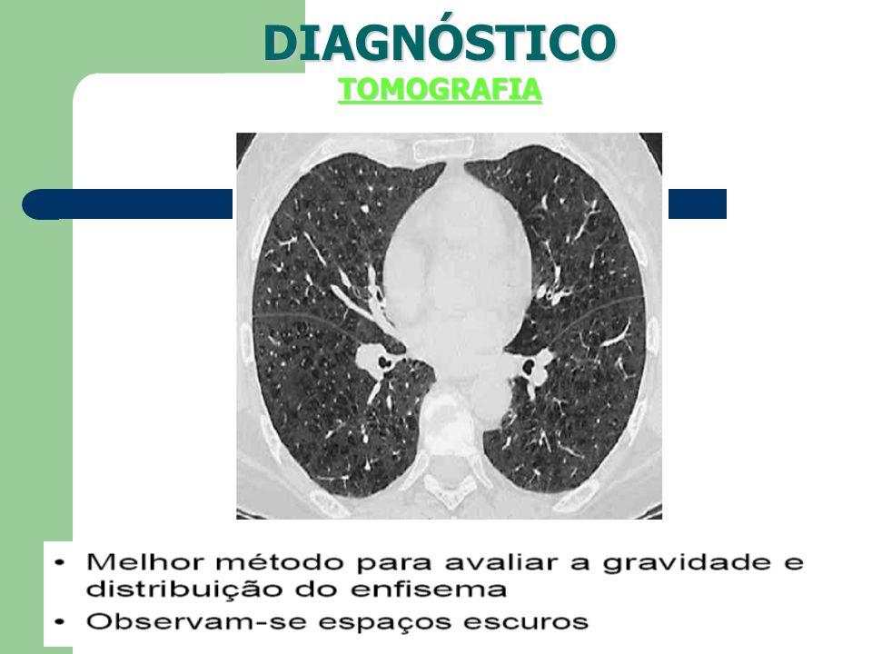 DIAGNÓSTICOTOMOGRAFIA