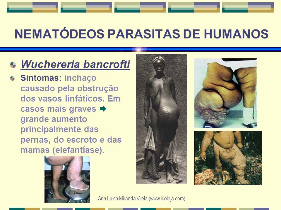 Ana Luisa Miranda Vilela (www.bioloja.com) NEMATÓDEOS PARASITAS DE HUMANOS Wuchereria bancrofti Sintomas: inchaço causado pela obstrução dos vasos lin