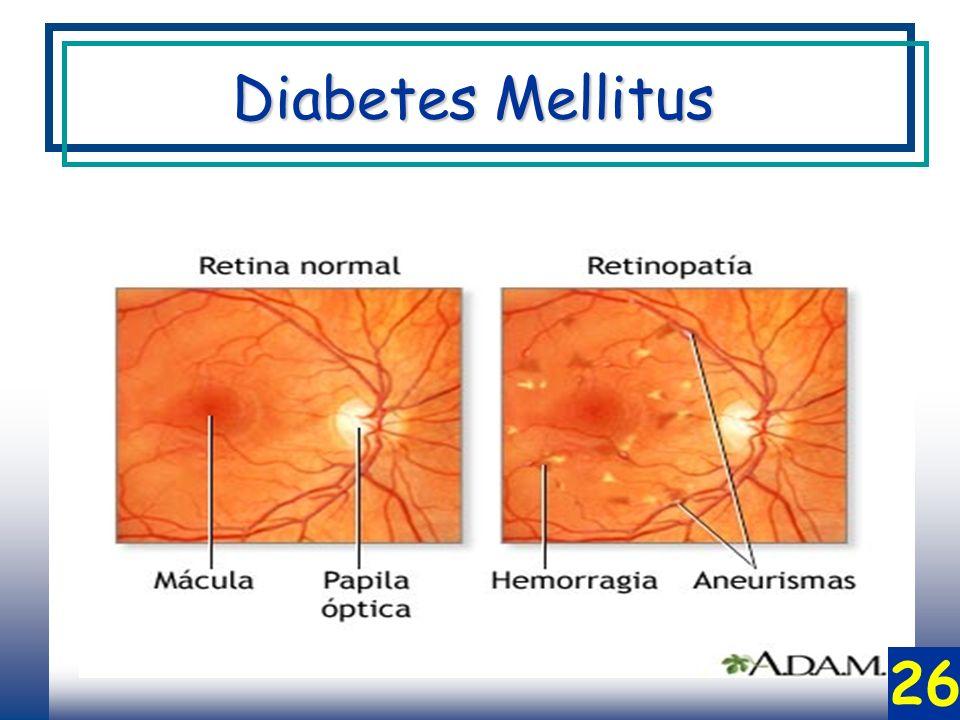 26 Diabetes Mellitus
