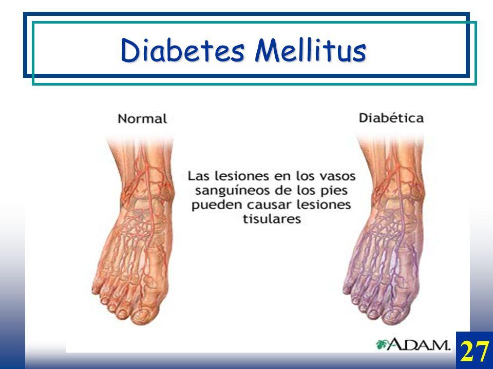 27 Diabetes Mellitus
