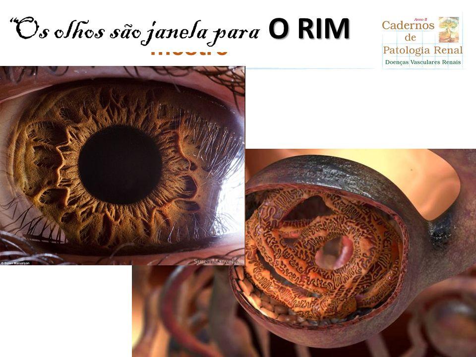 """Clique para editar o título mestre """"Os olhos são janela para a alma"""" O RIM"""