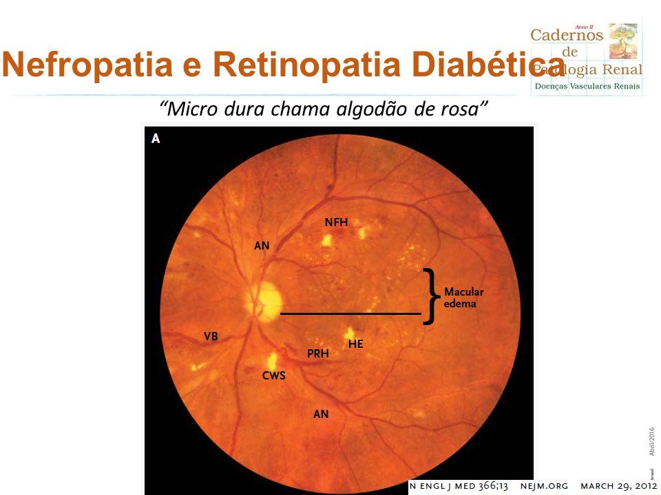 """Nefropatia e Retinopatia Diabética """"Micro dura chama algodão de rosa"""""""