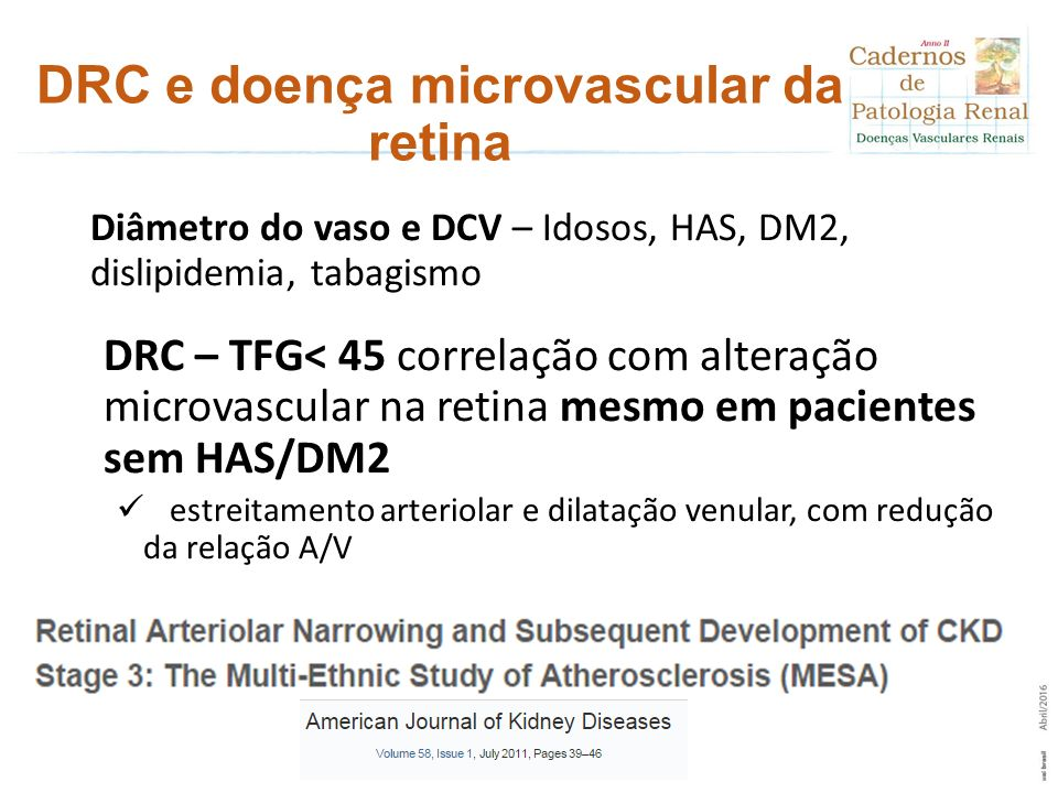 DRC e doença microvascular da retina Diâmetro do vaso e DCV – Idosos, HAS, DM2, dislipidemia, tabagismo DRC – TFG< 45 correlação com alteração microva