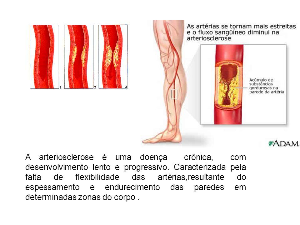 A arteriosclerose é uma doença crônica, com desenvolvimento lento e progressivo.