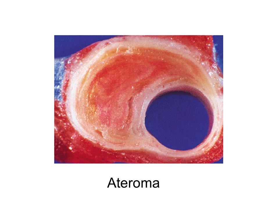 O colesterol é obtido por meio de síntese celular (colesterol endógeno -70%) e da dieta (colesterol exógeno- 30%).