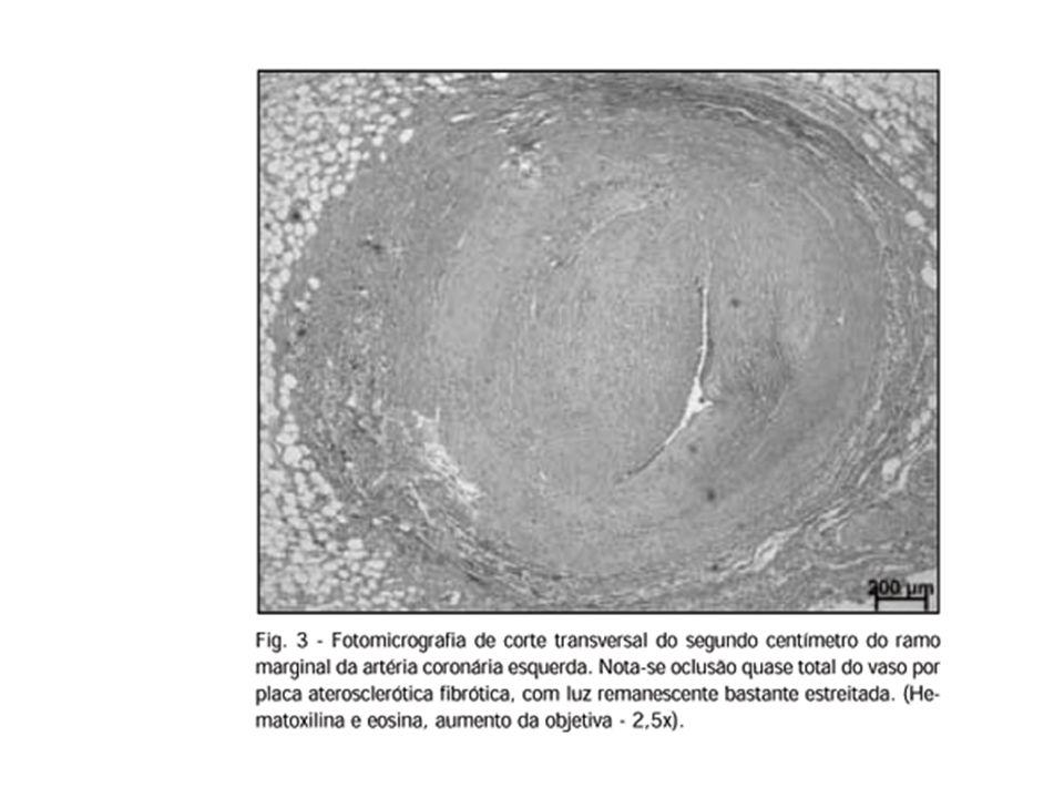 Lipoproteína de Baixa Densidade( Low Density Lipoproteins / LDL):transporta o colesterol do fígado até os tecidos.