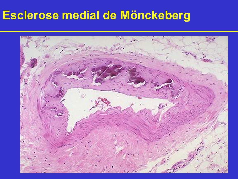 Esclerose medial de Mönckeberg