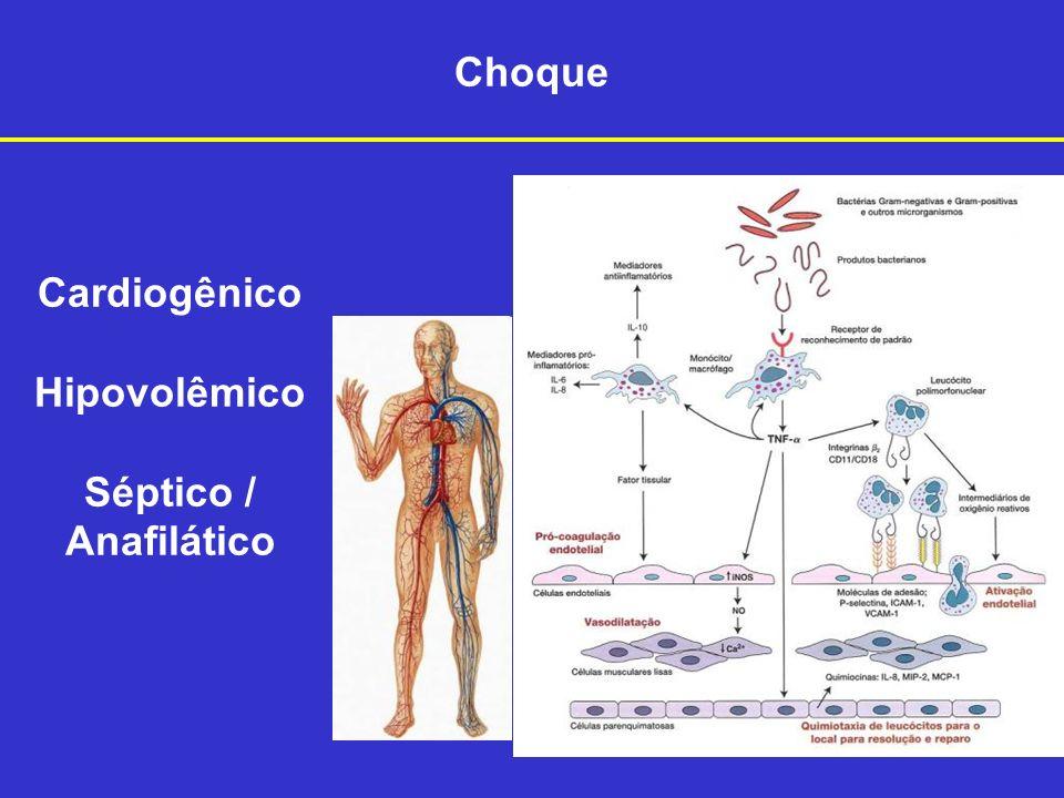 Choque Cardiogênico Hipovolêmico Séptico / Anafilático