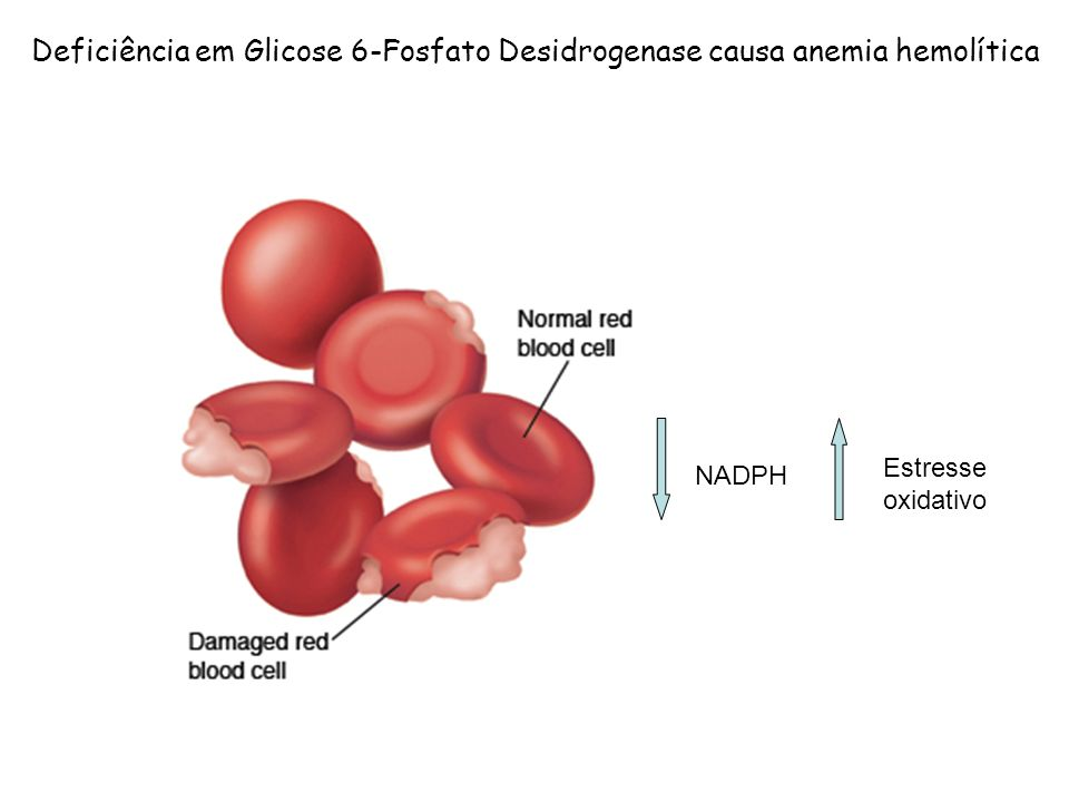 Resultado de imagem para deficiência de glicose-6-fosfato desidrogenase (g6pd)