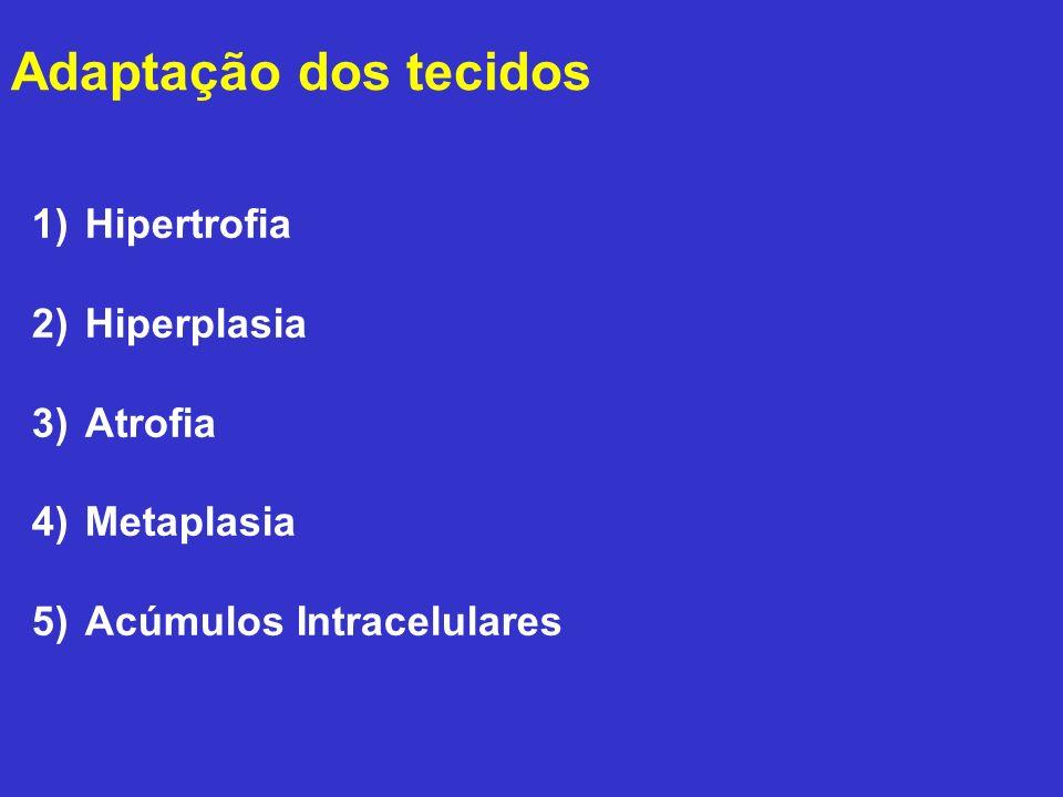 Adaptação dos tecidos 1)Hipertrofia 2)Hiperplasia 3)Atrofia 4)Metaplasia 5)Acúmulos Intracelulares