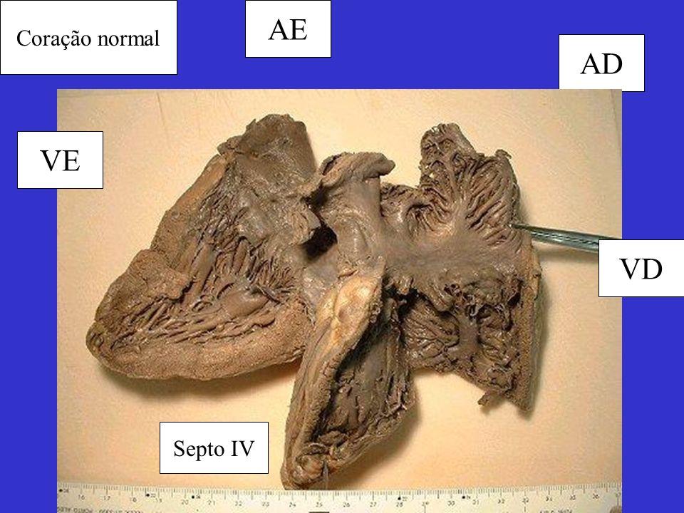 Coração normal AD AE VE VD Septo IV