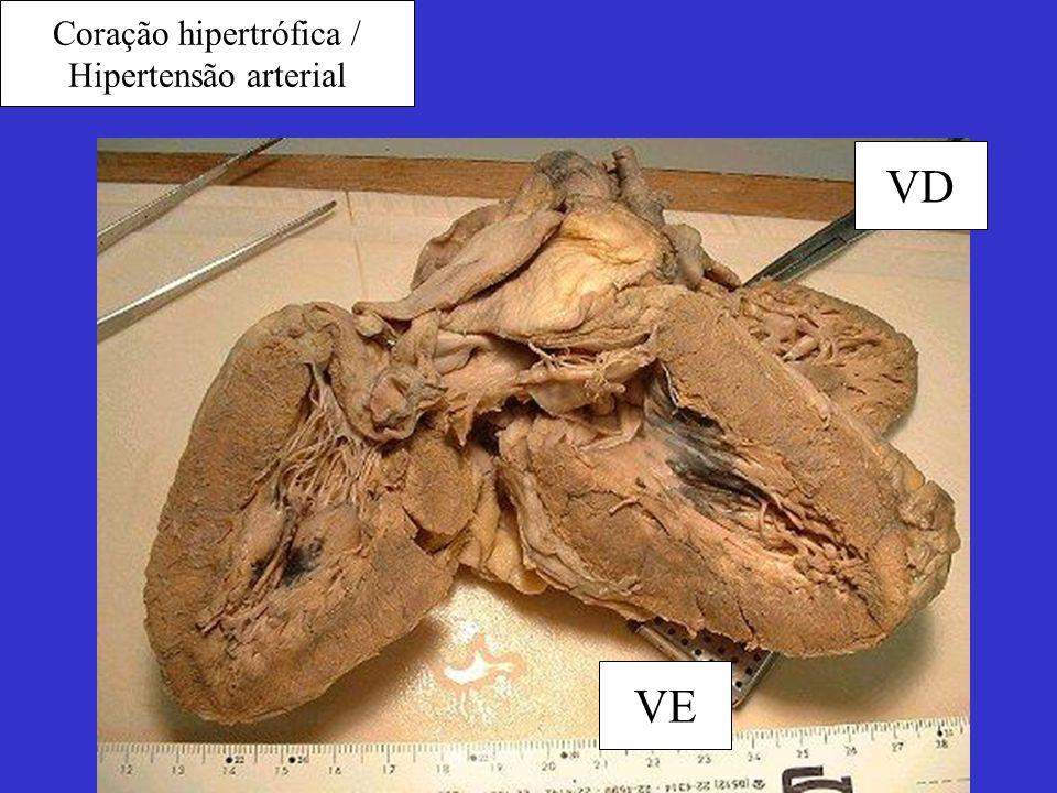 Coração hipertrófica / Hipertensão arterial VE VD