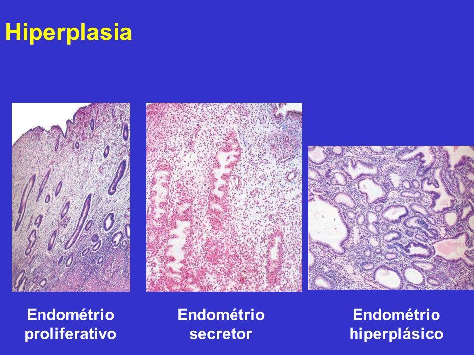 Endométrio proliferativo Endométrio secretor Endométrio hiperplásico Hiperplasia