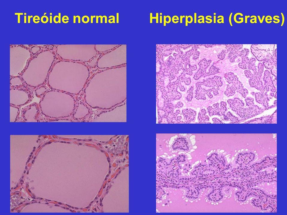 Tireóide normalHiperplasia (Graves)