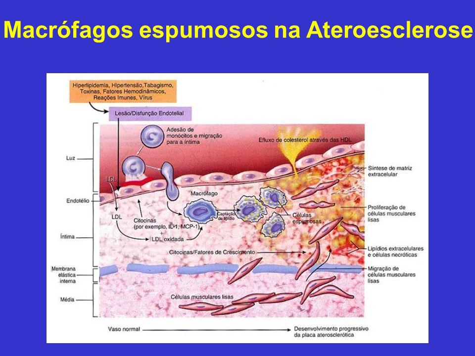 Macrófagos espumosos na Ateroesclerose