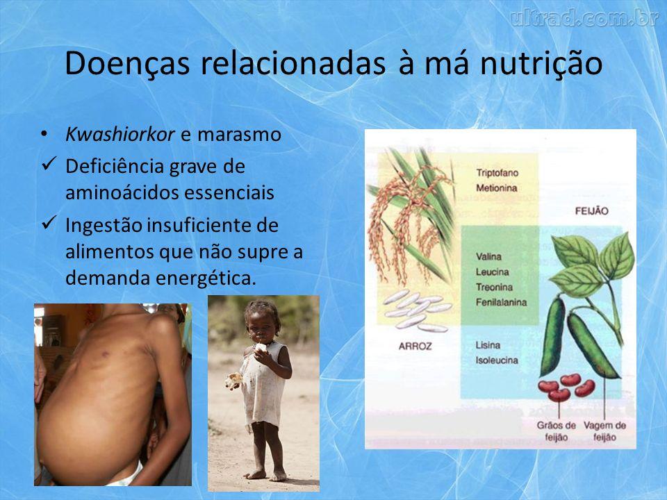 Doenças relacionadas à má nutrição Kwashiorkor e marasmo Deficiência grave de aminoácidos essenciais Ingestão insuficiente de alimentos que não supre a demanda energética.