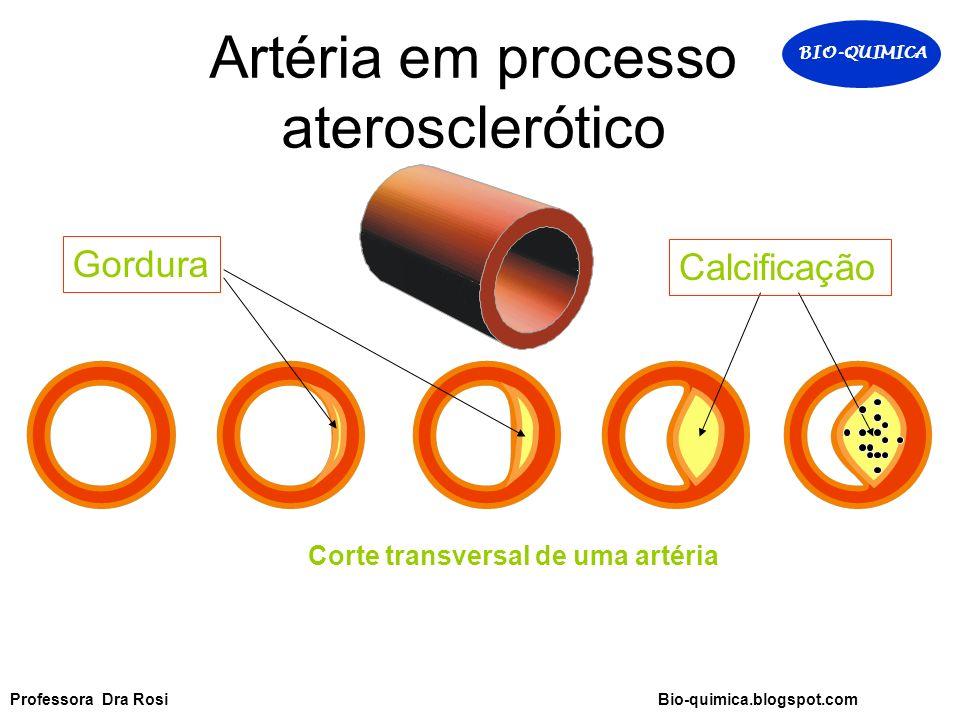 Corte transversal de uma artéria Artéria em processo aterosclerótico Gordura Calcificação BIO-QUIMICA Professora Dra Rosi Bio-quimica.blogspot.com