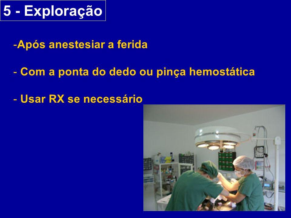 5 - Exploração -Após anestesiar a ferida - Com a ponta do dedo ou pinça hemostática - Usar RX se necessário