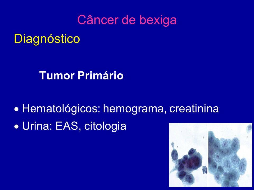 Câncer de bexiga Diagnóstico Tumor Primário  Hematológicos: hemograma, creatinina  Urina: EAS, citologia