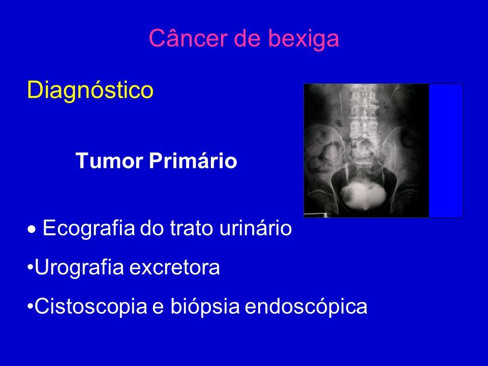 Câncer de bexiga Diagnóstico Tumor Primário  Ecografia do trato urinário Urografia excretora Cistoscopia e biópsia endoscópica