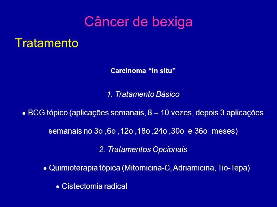 Câncer de bexiga Tratamento Carcinoma in situ 1.