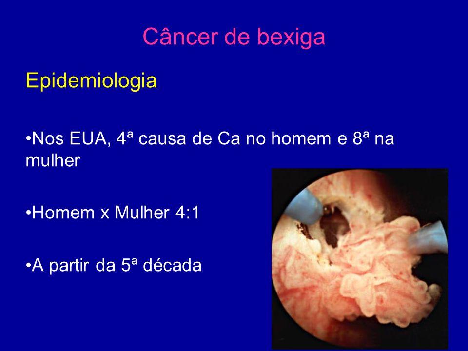 Câncer de bexiga Epidemiologia Nos EUA, 4ª causa de Ca no homem e 8ª na mulher Homem x Mulher 4:1 A partir da 5ª década