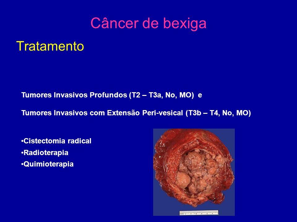 Câncer de bexiga Tratamento Tumores Invasivos Profundos (T2 – T3a, No, MO) e Tumores Invasivos com Extensão Peri-vesical (T3b – T4, No, MO) Cistectomia radical Radioterapia Quimioterapia