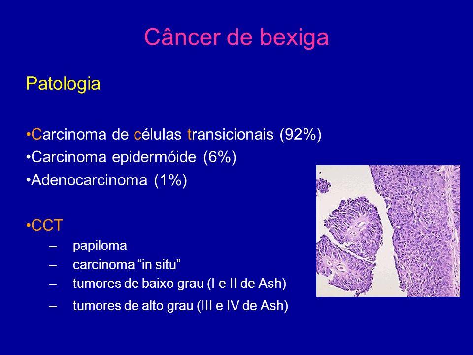 Câncer de bexiga Patologia Carcinoma de células transicionais (92%) Carcinoma epidermóide (6%) Adenocarcinoma (1%) CCT –papiloma –carcinoma in situ –tumores de baixo grau (I e II de Ash) –tumores de alto grau (III e IV de Ash)