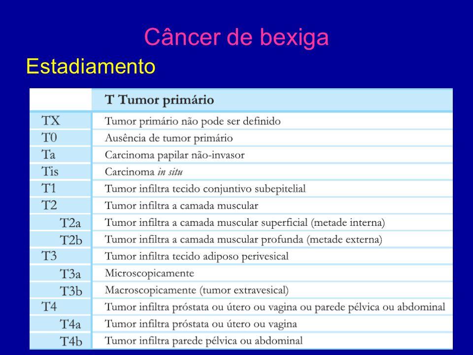 Câncer de bexiga Estadiamento