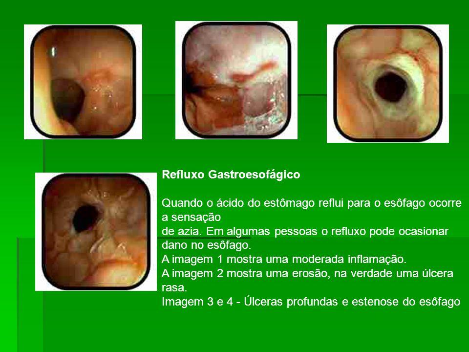 Refluxo Gastroesofágico Quando o ácido do estômago reflui para o esôfago ocorre a sensação de azia.