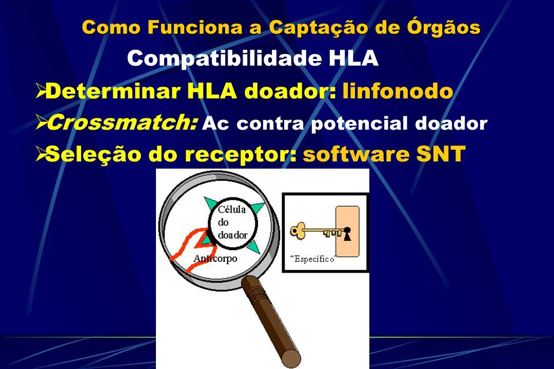 Como Funciona a Captação de Órgãos Compatibilidade HLA Determinar HLA doador: linfonodo Crossmatch: Ac contra potencial doador Seleção do receptor: software SNT