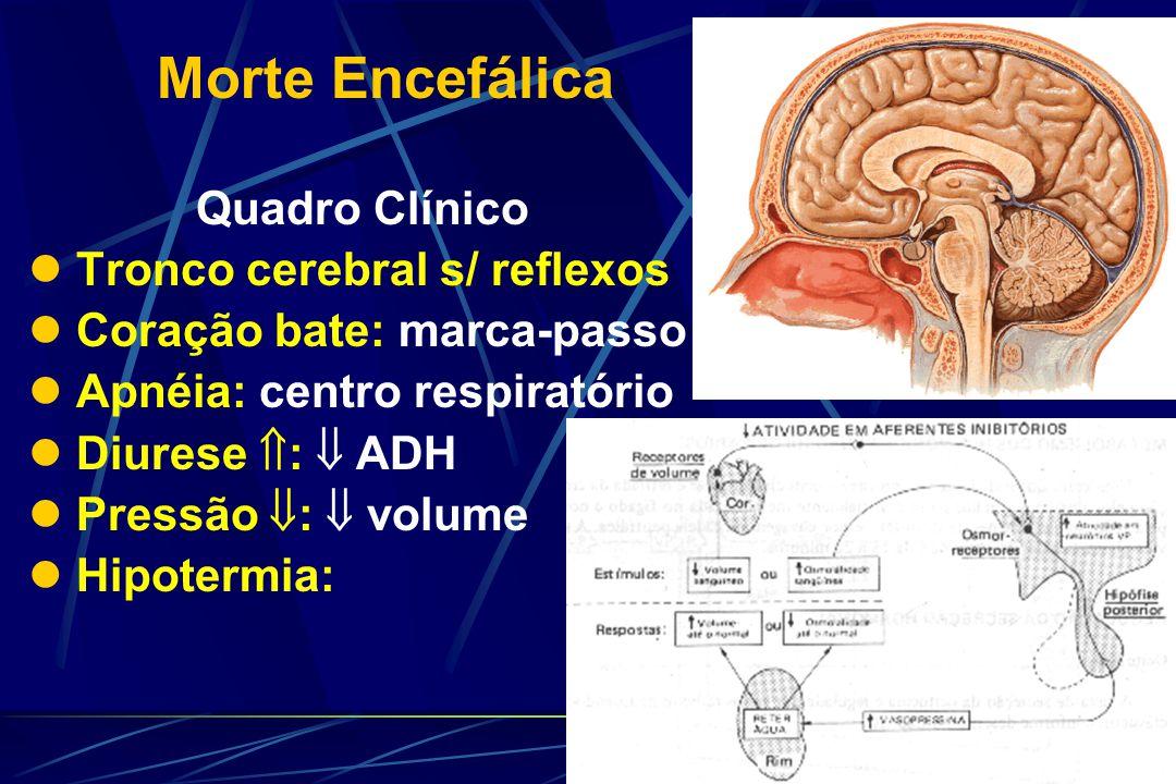Morte Encefálica Quadro Clínico Tronco cerebral s/ reflexos Coração bate: marca-passo Apnéia: centro respiratório Diurese : ADH Pressão : volume Hipotermia: