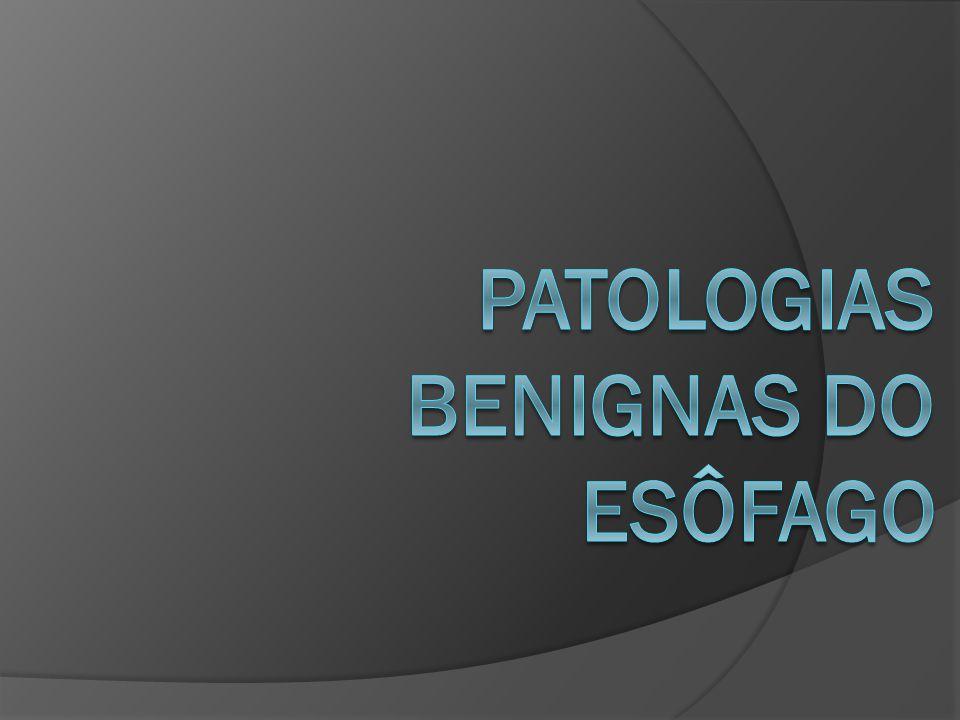 Patologias Benignas do Esôfago Dra.