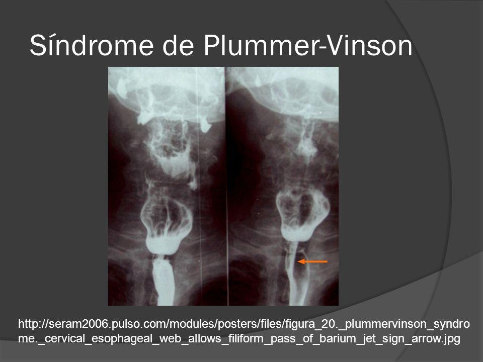 Síndrome de Plummer-Vinson http://seram2006.pulso.com/modules/posters/files/figura_20._plummervinson_syndro me._cervical_esophageal_web_allows_filifor