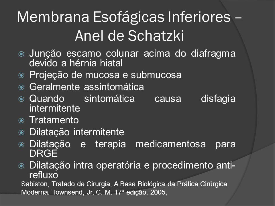 Membrana Esofágicas Inferiores – Anel de Schatzki Junção escamo colunar acima do diafragma devido a hérnia hiatal Projeção de mucosa e submucosa Geral