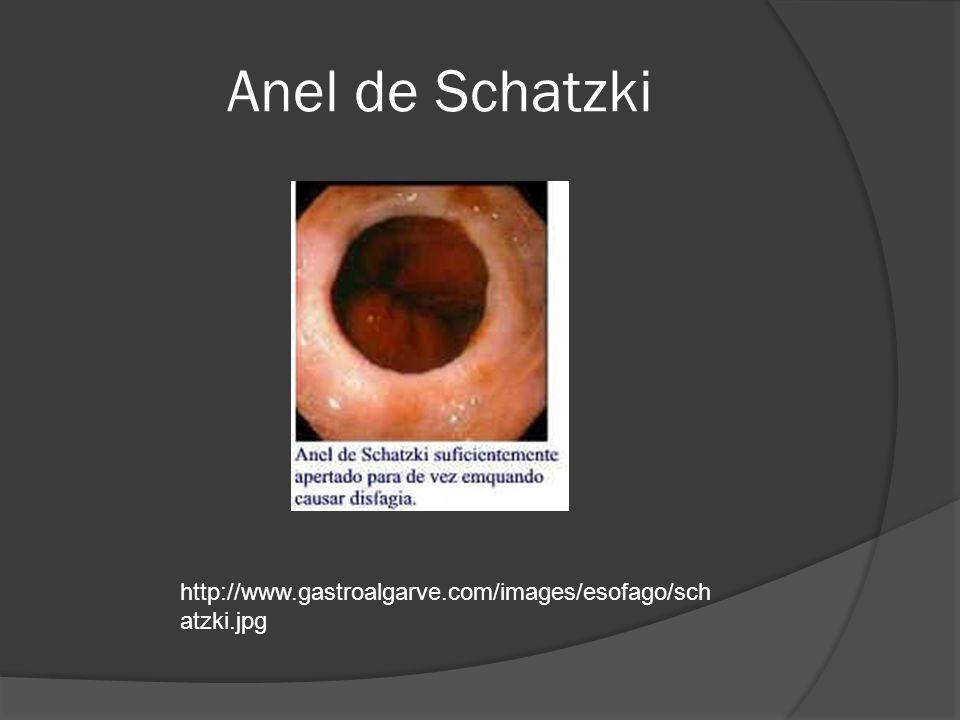 Anel de Schatzki http://www.gastroalgarve.com/images/esofago/sch atzki.jpg