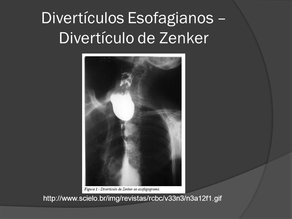 Divertículos Esofagianos – Divertículo de Zenker http://www.scielo.br/img/revistas/rcbc/v33n3/n3a12f1.gif