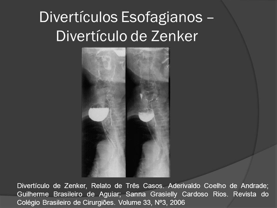 Divertículos Esofagianos – Divertículo de Zenker Divertículo de Zenker, Relato de Três Casos. Aderivaldo Coelho de Andrade; Guilherme Brasileiro de Ag