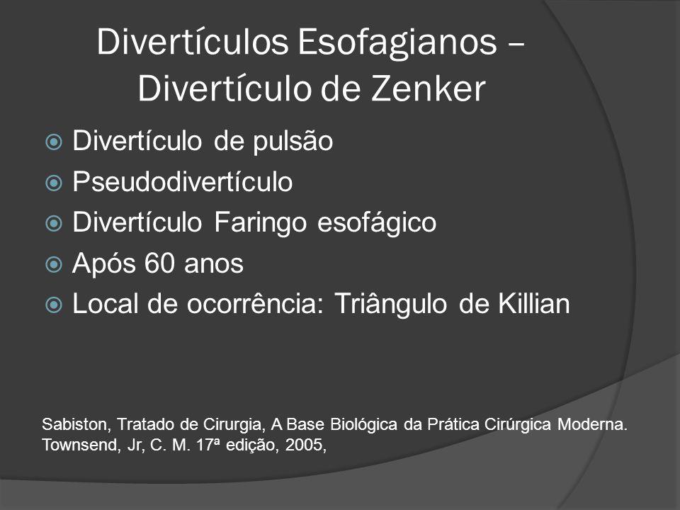 Divertículos Esofagianos – Divertículo de Zenker Divertículo de pulsão Pseudodivertículo Divertículo Faringo esofágico Após 60 anos Local de ocorrênci