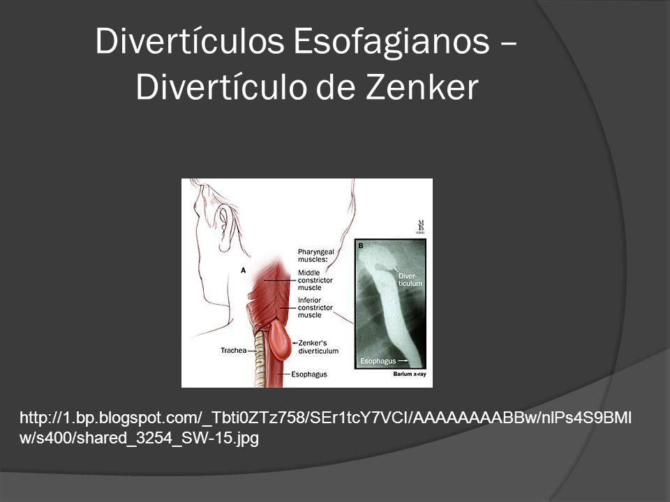 Divertículos Esofagianos – Divertículo de Zenker http://1.bp.blogspot.com/_Tbti0ZTz758/SEr1tcY7VCI/AAAAAAAABBw/nlPs4S9BMl w/s400/shared_3254_SW-15.jpg