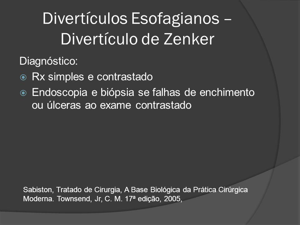 Divertículos Esofagianos – Divertículo de Zenker Diagnóstico: Rx simples e contrastado Endoscopia e biópsia se falhas de enchimento ou úlceras ao exam