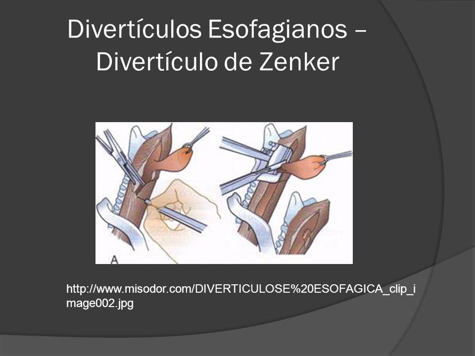 Divertículos Esofagianos – Divertículo de Zenker http://www.misodor.com/DIVERTICULOSE%20ESOFAGICA_clip_i mage002.jpg