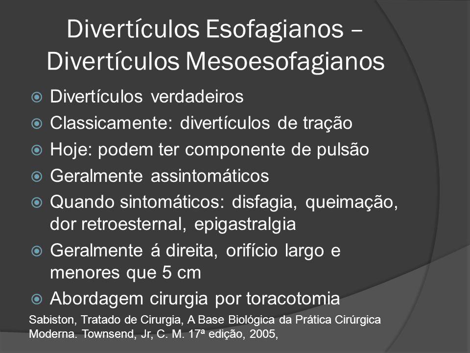 Divertículos Esofagianos – Divertículos Mesoesofagianos Divertículos verdadeiros Classicamente: divertículos de tração Hoje: podem ter componente de p