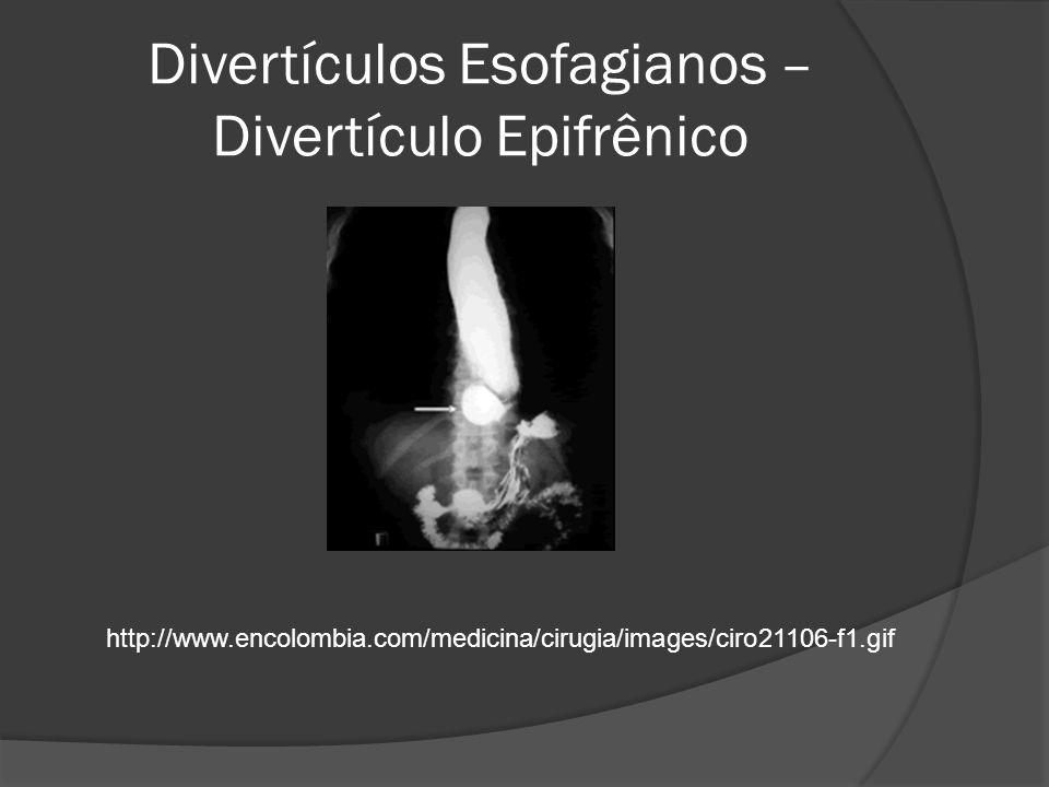 Divertículos Esofagianos – Divertículo Epifrênico http://www.encolombia.com/medicina/cirugia/images/ciro21106-f1.gif