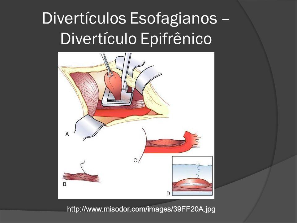 Divertículos Esofagianos – Divertículo Epifrênico http://www.misodor.com/images/39FF20A.jpg