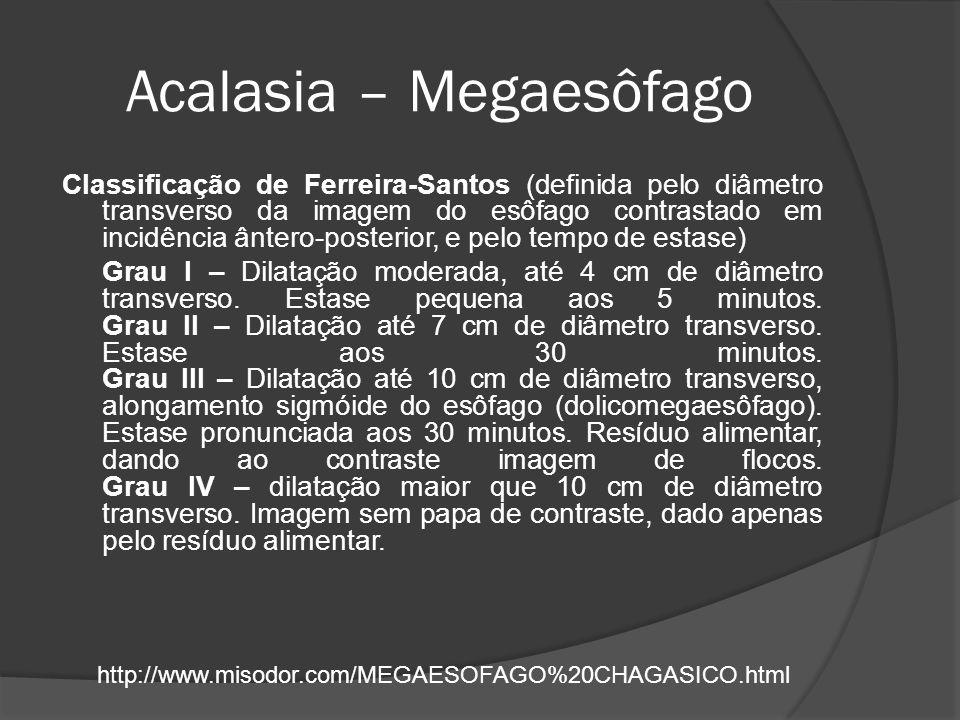 Acalasia – Megaesôfago Classificação de Ferreira-Santos (definida pelo diâmetro transverso da imagem do esôfago contrastado em incidência ântero-poste